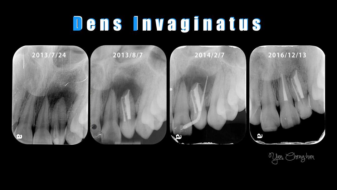 Dens-invaginatus-001